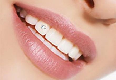 стоит ли делать виниры на здоровые зубы